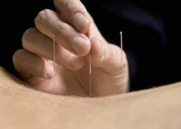 Top 6 diseases you can say goodbye to, with the help of Acupuncture Treatment