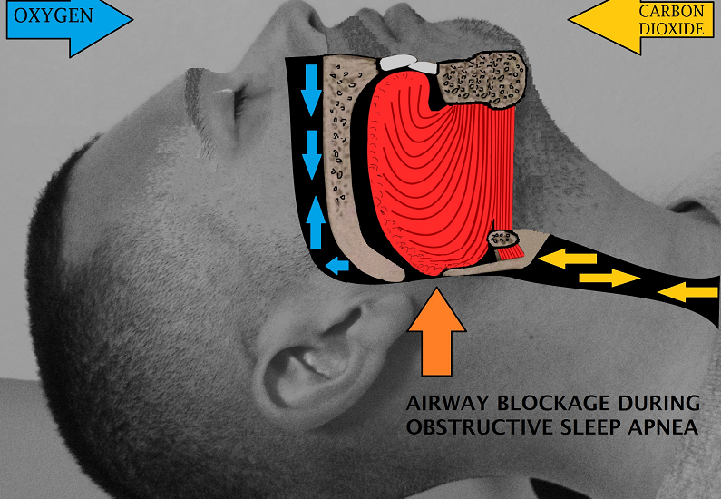 What's the Difference Between Snoring and Sleep Apnea?