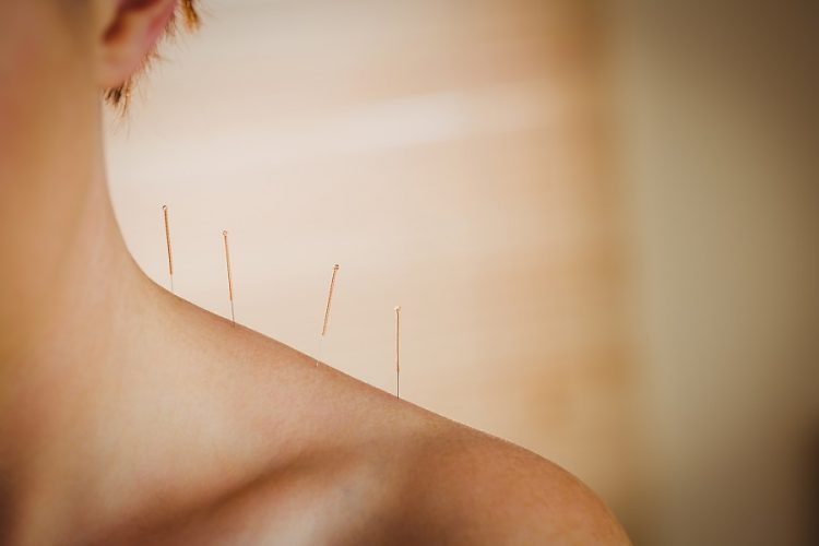 Acupuncture versus Phytotherapy