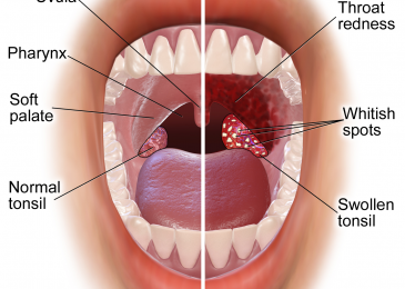 Treatment of tonsillitis with natural herbs
