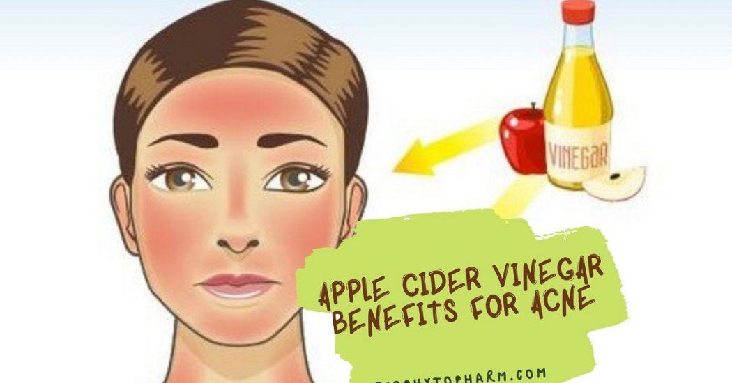 Apple Cider Vinegar Benefits for Acne