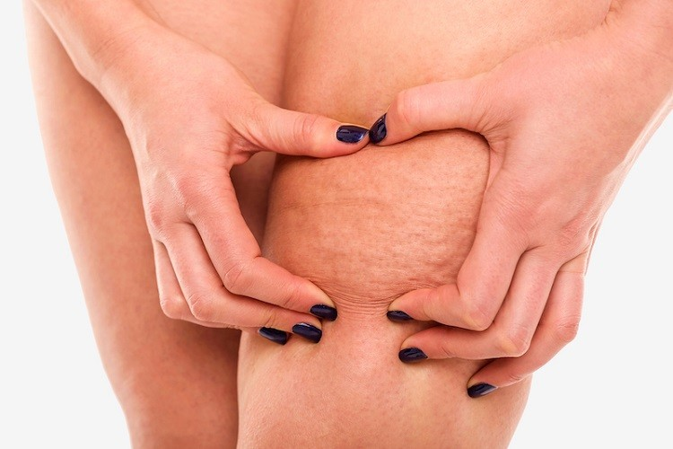 How to Get Rid of Cellulite Fast at Home