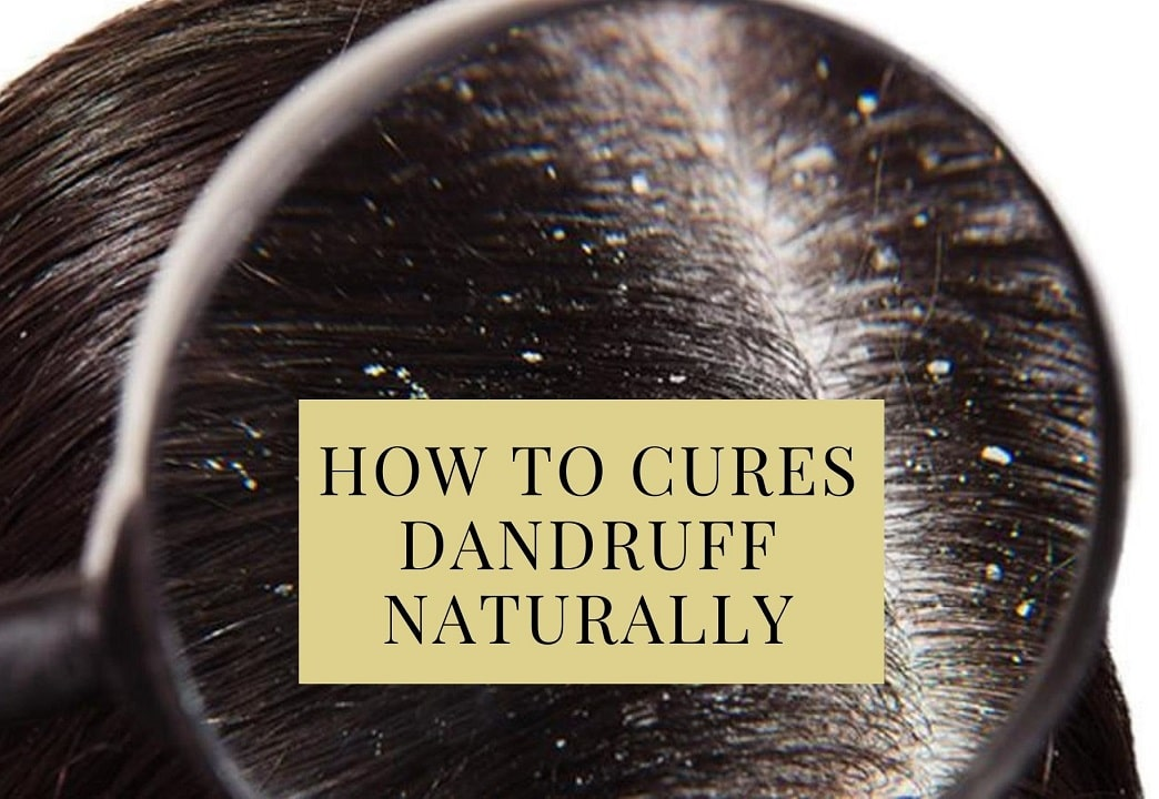 How To Cures Dandruff Naturally