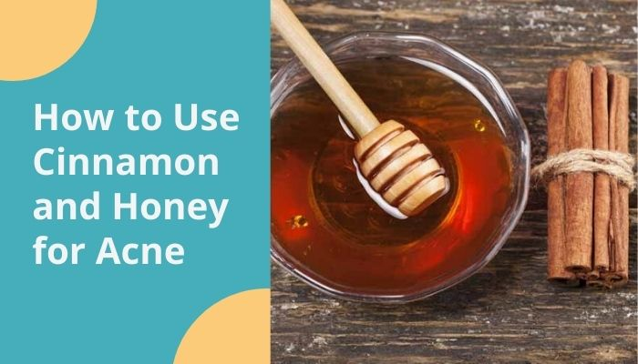 How to Use Cinnamon and Honey for Acne