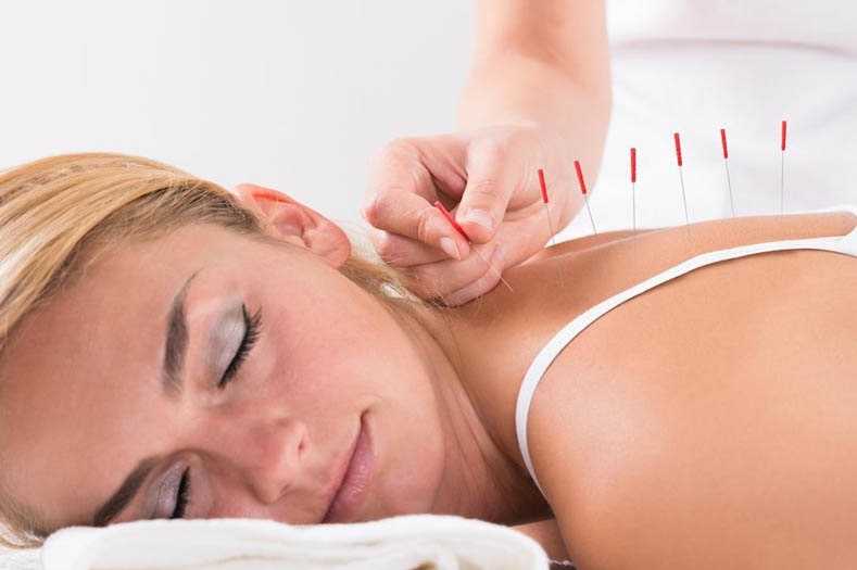 Side Effects of Acupuncture
